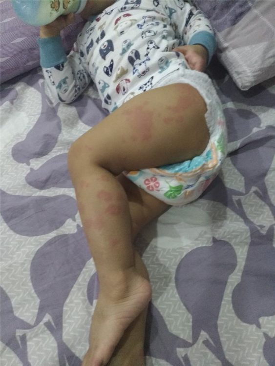 This is our baby whenever his atopic dermatitis attacks. It can manifest anywhere in his body. This time, it's on his legs.